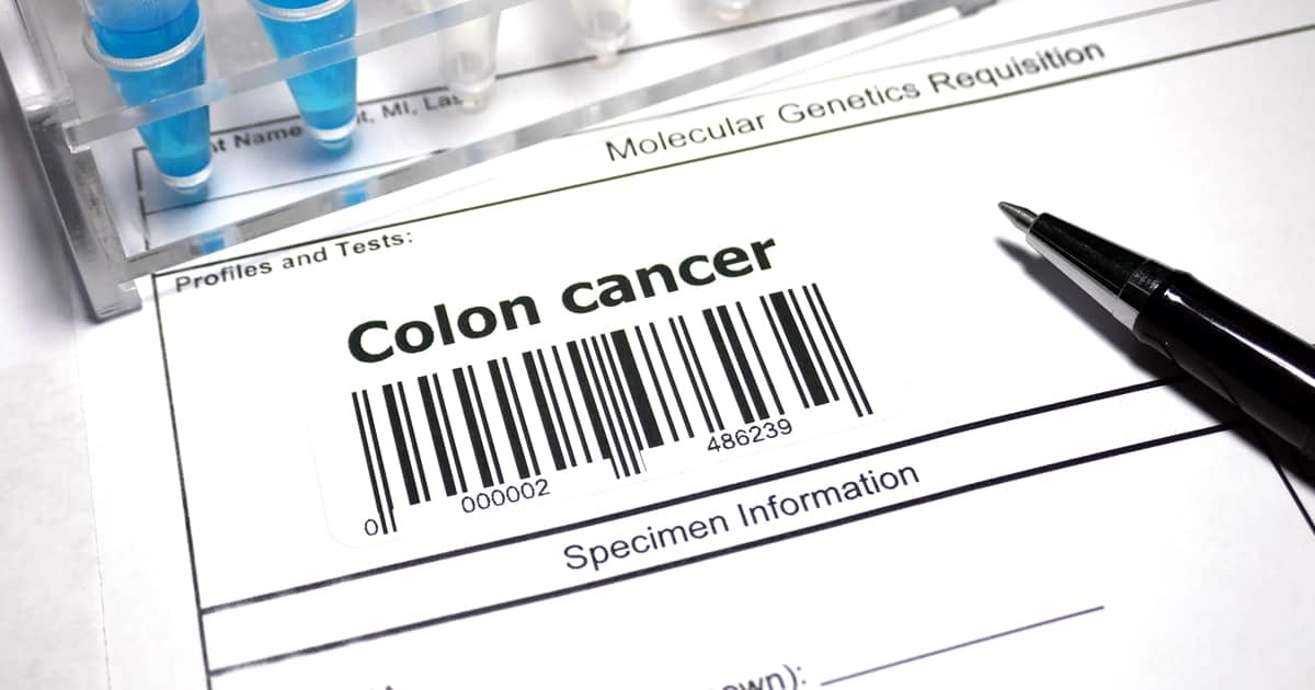Colorectal Cancer Stages Cary Gastroenterology Associates
